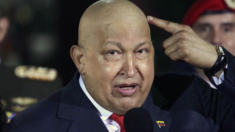 Hugo Chavez jest w krytycznym stanie