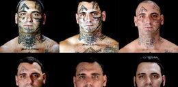 Tak neonazista usunął sobie tatuaże z twarzy! Zobacz