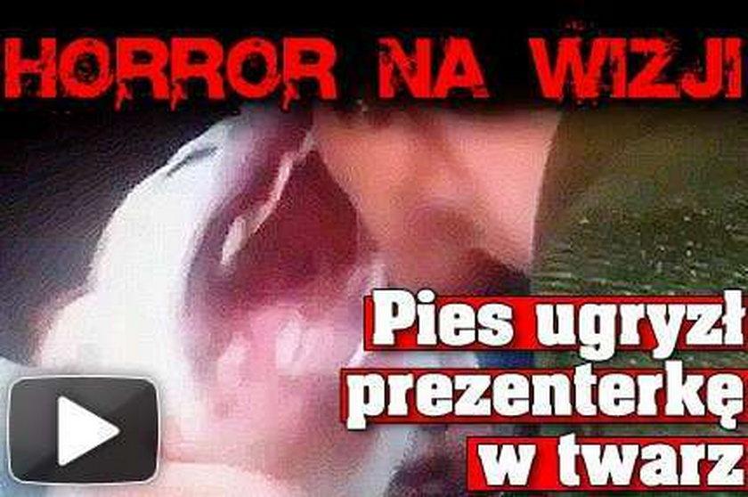 Horror na wizji. Pies ugryzł prezenterkę w twarz. FILM