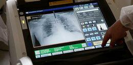 Zbadali im płuca po COVID-19: to szokujące, nie rozumiemy, co się tu dzieje