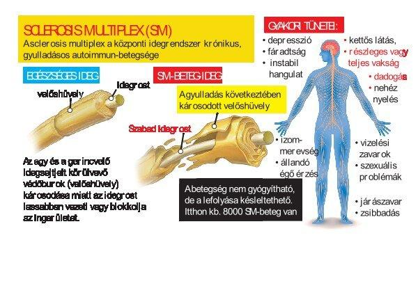 sclerosis multiplex és merevedési problémák
