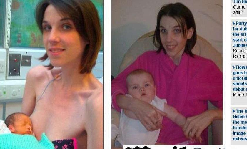 matka dziecko anoreksja