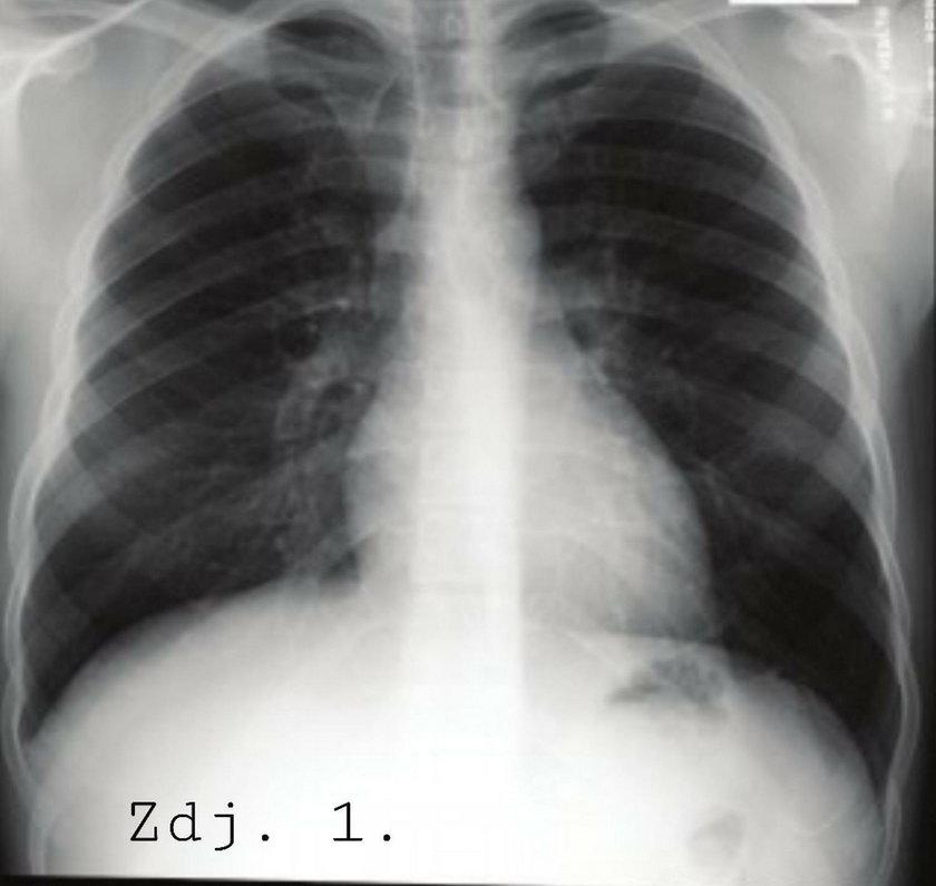 Prawidłowy zdjęcie RTG płuc