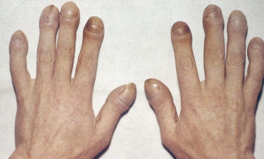 Palce pałeczkowate mogą być objawem problemów z sercem