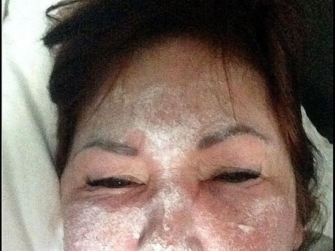 Htela je samo tretman botoksom: Lažni doktor joj je na licu napravio KATASTROFU