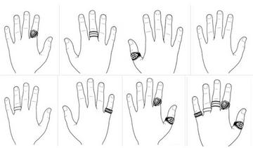 milyen betegség okozza a gyűrűt