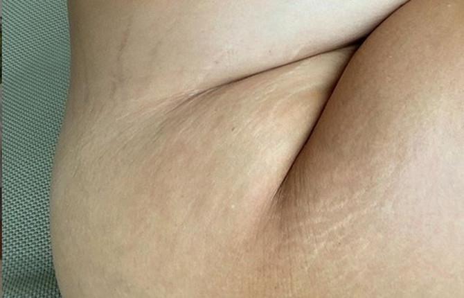 Ešli Grejem okačila je veoma provokativnu trudničku fotografiju