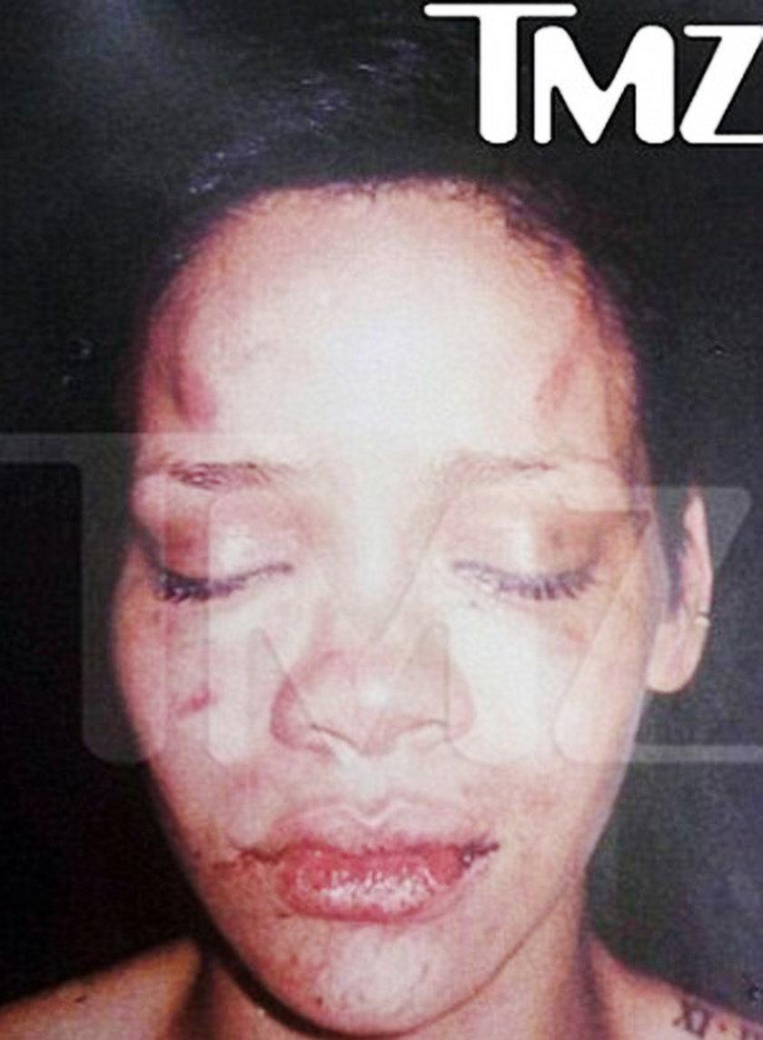 Rihanna po pobiciu przez Chrisa Browna