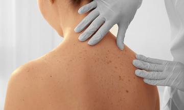 Nem festékes bőrrákok tünetei és kezelése
