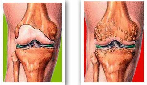 ásványvíz a térd artrózisához)
