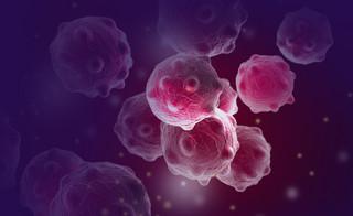 Naukowcy: Przez pandemię wiele nowotworów pozostało niewykrytych
