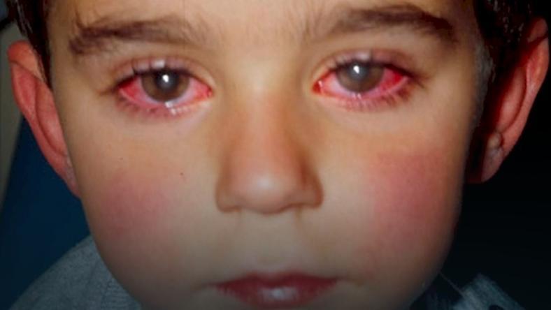 Chłopiec stracił 75 proc. wzroku przez laser