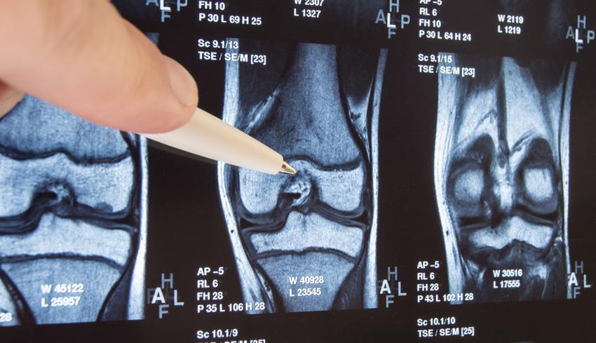 csontritkulásos kenőcs kezelésére a karok és a lábak ízületei súlyosan fájnak