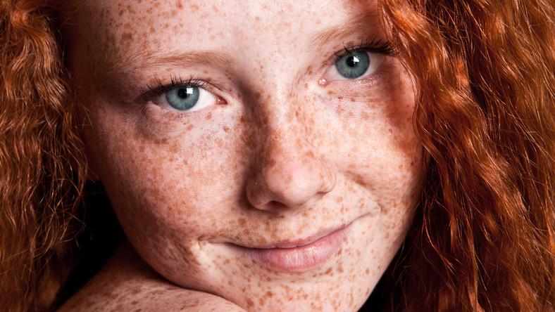 Jak obchodzić się z przebarwieniami skóry latem?