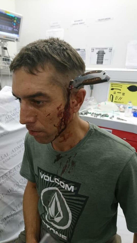 Kelner zgłosił się do lekarza z nożem w głowie!