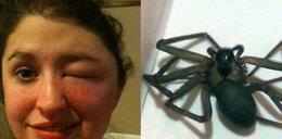 Ugryzł ją pająk! Spuchła jak balon i się cieszy!