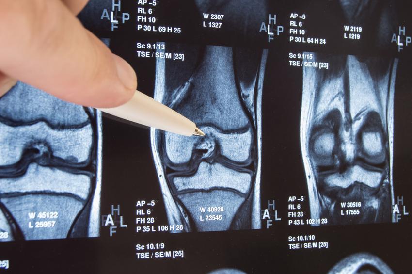könyökfájdalom gyengeség a kézben boka fájdalom kezelést okoz