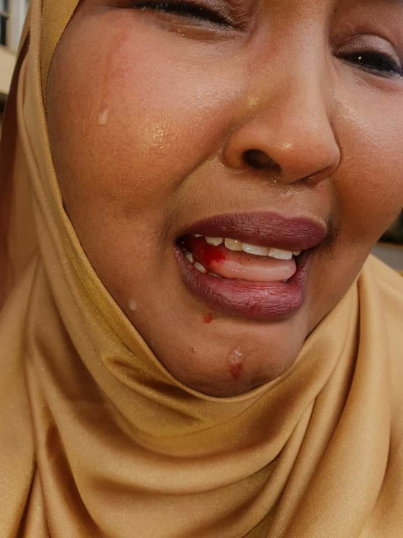 Wajir Woman Rep Fatuma Gedi badly beaten up Wajir East MP Rashid Kassim at Parliament buildings
