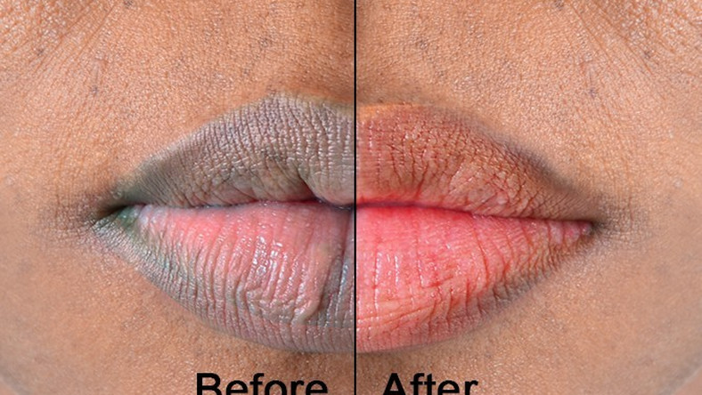 5 kitchen ingredients that you can use for pink lips [Medium]