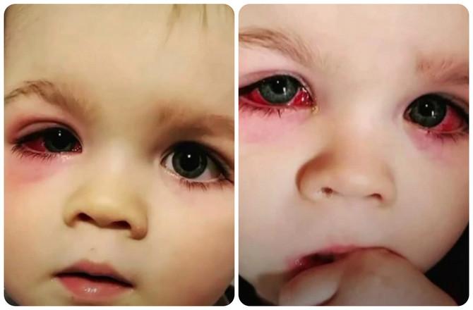 Mali Bejlor je završio sa teškom infekcijom