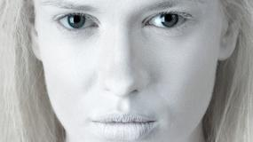 Albinosi - okaleczani i mordowani, bo leczą i przynoszą szczęście