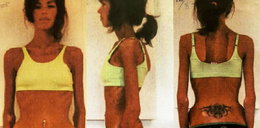 Lekarze dali jej 3 dni życia. Tak pokonała anoreksję