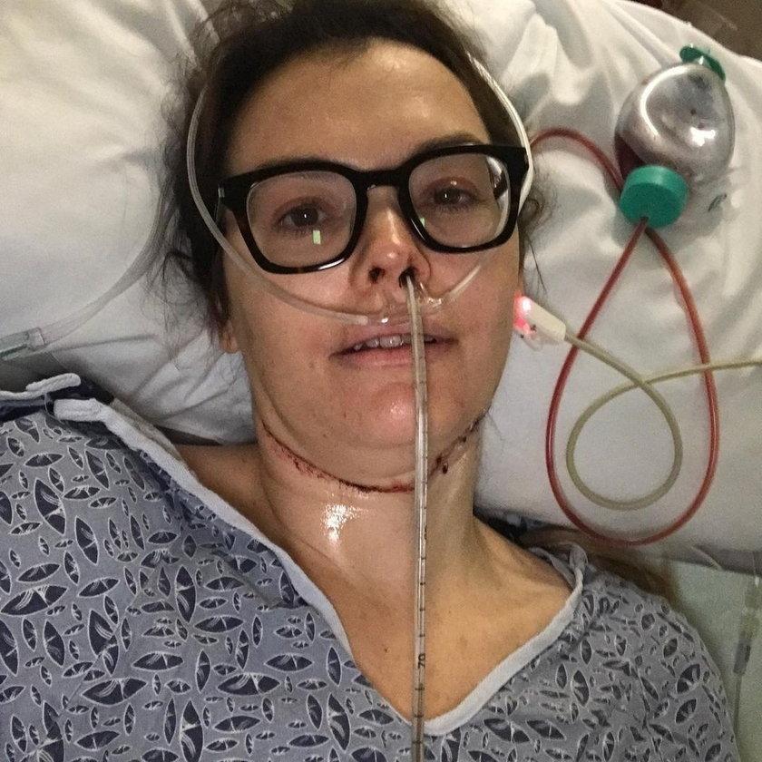 Myślała, że się ugryzła podczas snu. Gdyby posłuchała dentysty, byłaby już martwa