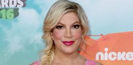 """Co się dzieje z twarzą gwiazdy """"Beverly Hills 90210""""?"""