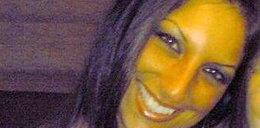 33-latkę męczył zatkany nos. Usunęli jej połowę twarzy