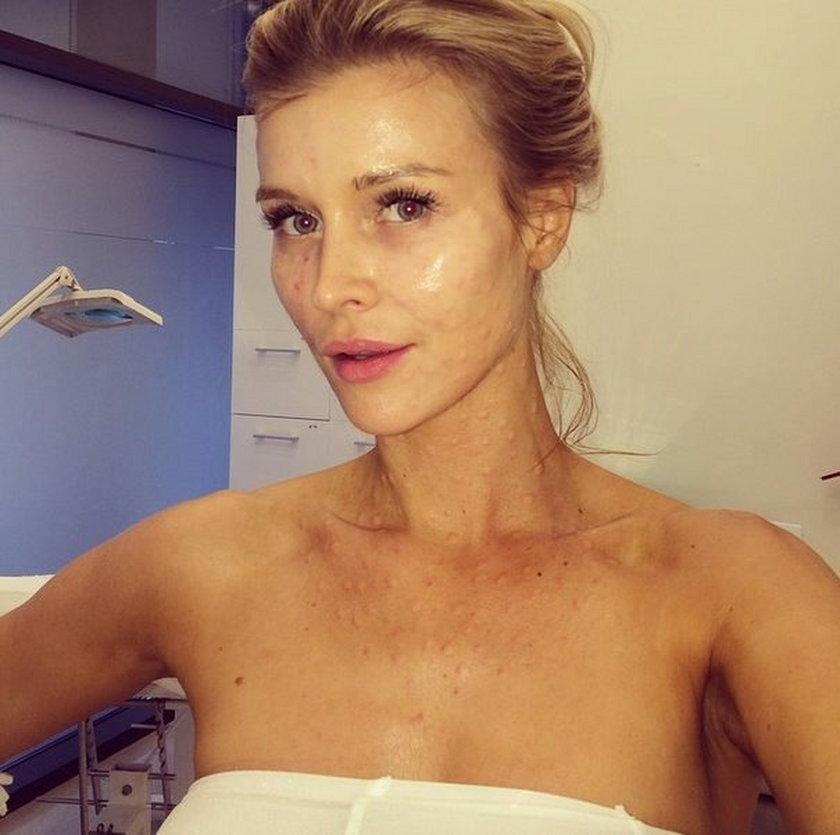 Joanna Krupa na wampirzym liftingu - instagram
