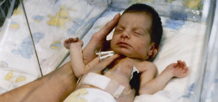 Przeszczepili niemowlęciu serce pawiana. Rodzice wyrazili na to zgodę, a dziewczynka walczyła o życie 20 dni