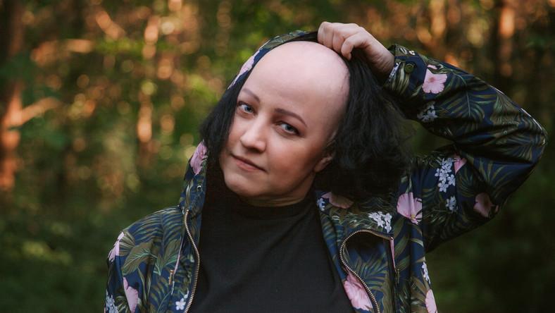 """Autorka książki """"Alopecjanki. Historie łysych kobiet"""" podobnie, jak jej bohaterki ma łysienie plackowate."""