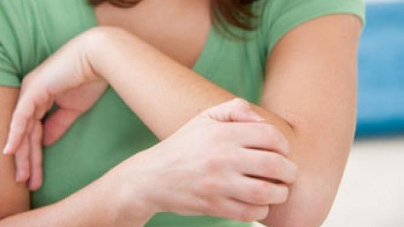 File photo: Woman with itchy skin