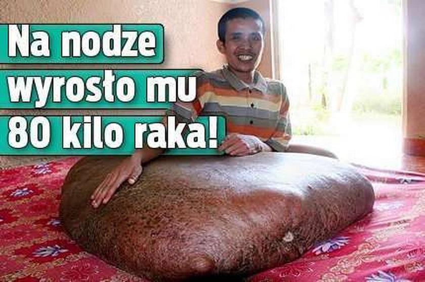Na nodze wyrosło mu 80 kilo raka!