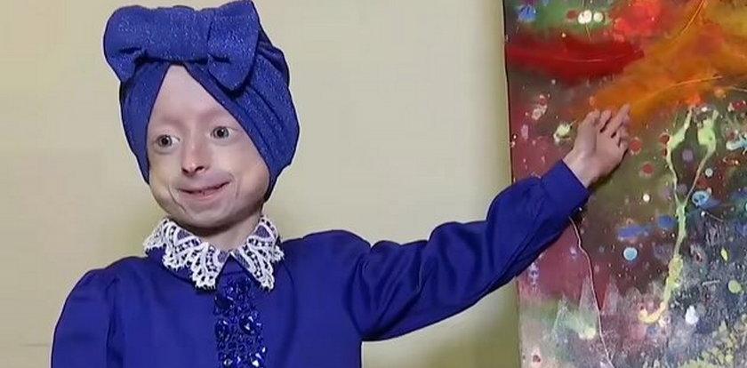 Nie żyje 10-latka z rzadką chorobą. Nie zdążyła spełnić marzenia