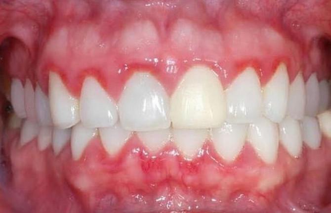Boja ne garantuje zdravlje zuba