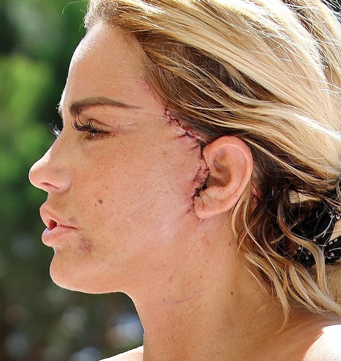 Kejti Prajs nakon operacija u Turskoj