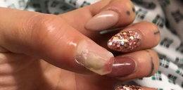Prawie straciła kciuk! Wszystko przez sztuczne paznokcie