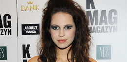 O nie! Co Top Model zrobiła ze swoją twarzą?!