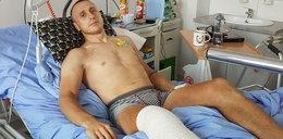 Bartłomiej stracił nogę, ale się nie poddaje: jeszcze wrócę
