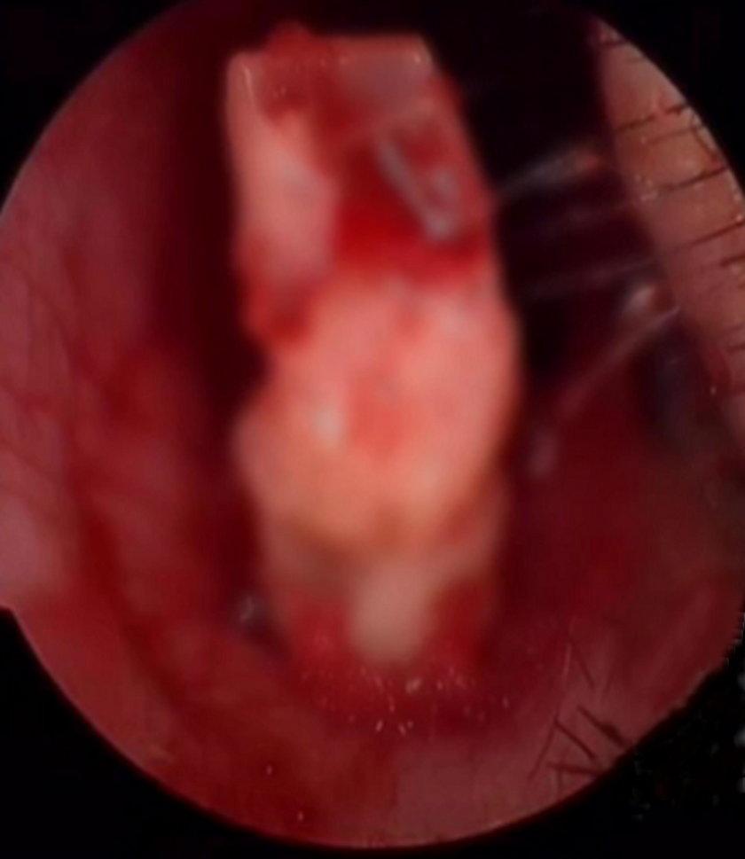 Chiny: 6-latka nie mogła oddychać przez ząb w nosie