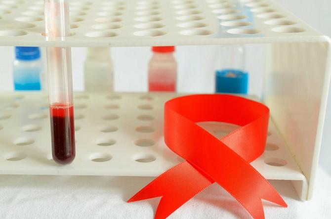 Osobe sa hemofilijom imaju nedostatak jednog od faktora zgrušavanja krvi