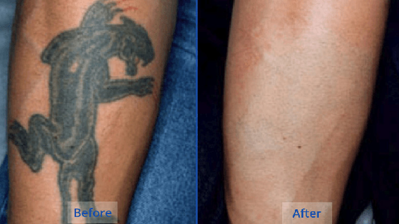 5 natural tattoo removal remedies you can try at home - Pulse Ghana