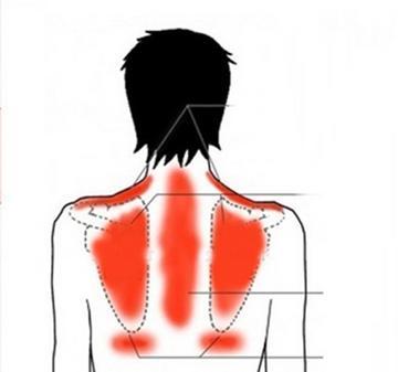 Komoly bajt jelezhet a hátfájdalom