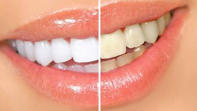 Comment blanchir vos dents avec des écorces de banane