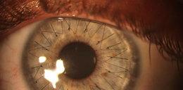 Tak wyglądają szwy w oku po operacji. UWAGA! Dla ludzi o mocnych nerwach!