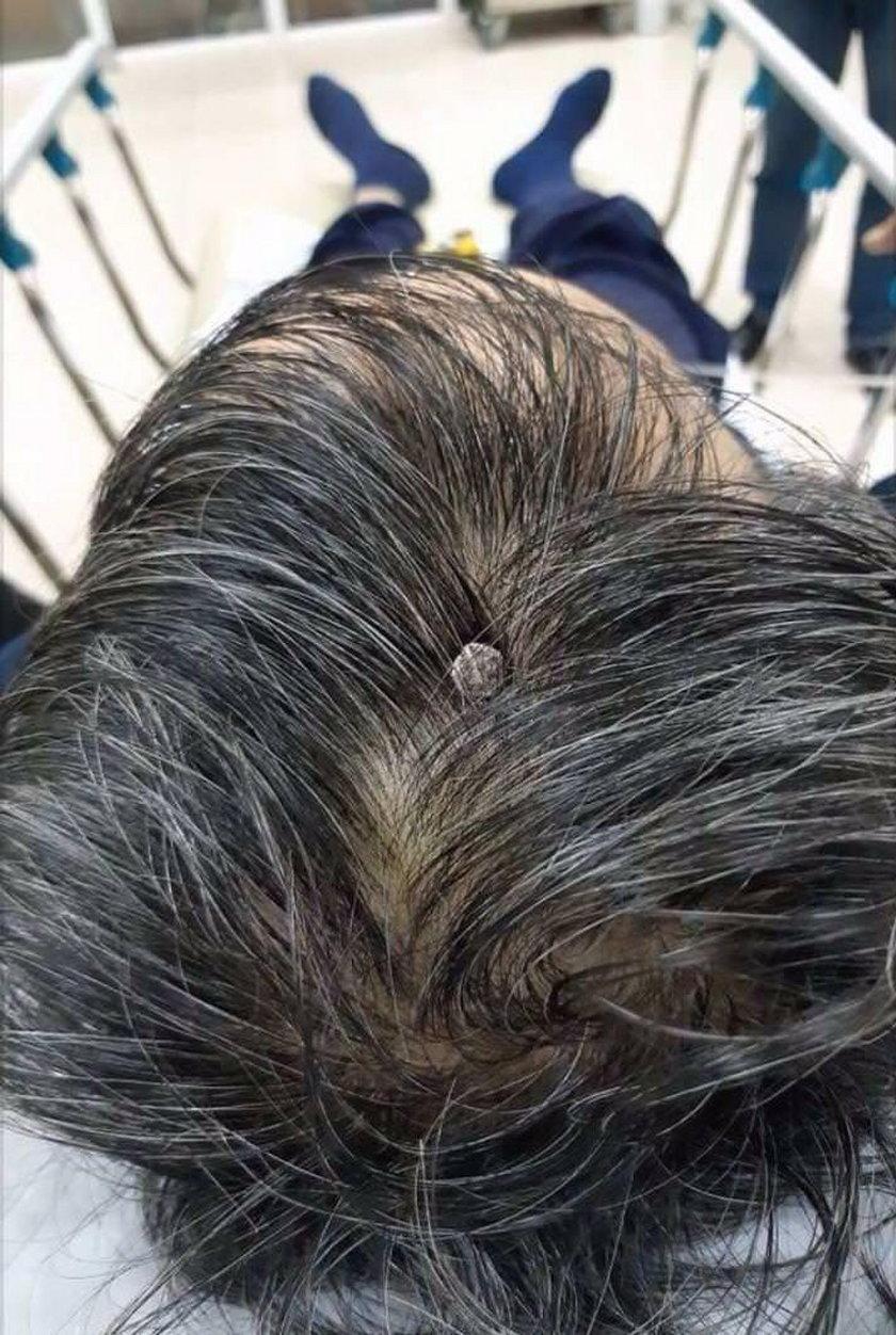 mężczyzna z gwoździem w głowie