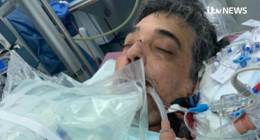Lekarze nie dawali mu szans na przeżycie. Najbliższe święta spędzi z rodziną