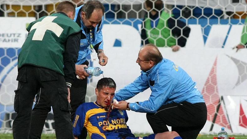 Paweł Zawistowski poważnie ucierpiał podczas mecz z Legią