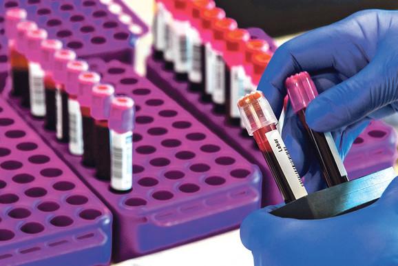 Brzo testiranje je presudno za sprečavanje širenja virusa